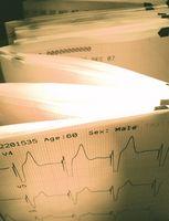 Como a figura de freqüência cardíaca durante o exercício